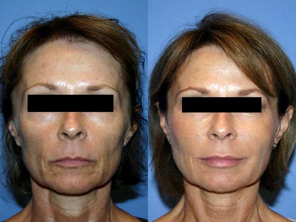 Что такое репарация кожи лица