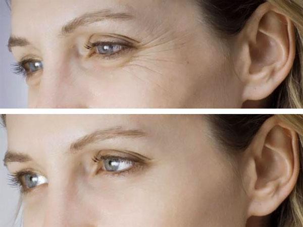 Мезонити вокруг глаз фото
