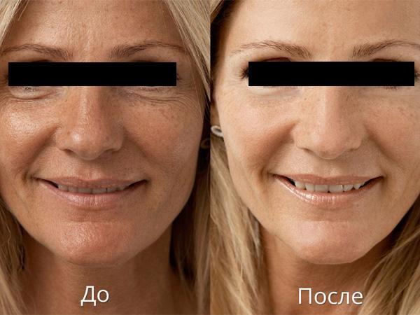 Введение коллагена в кожу лица