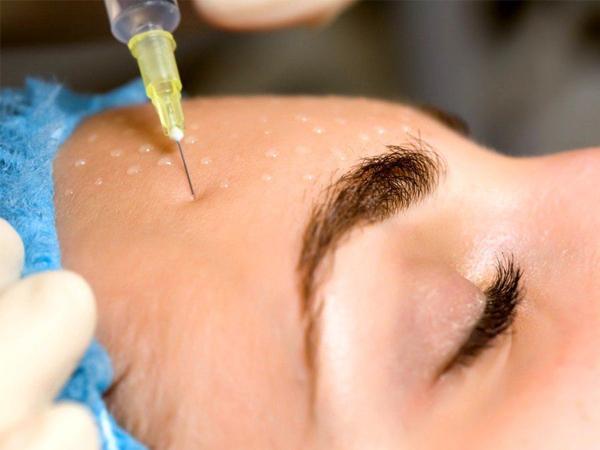 Отбеливание кожи лица мезотерапией