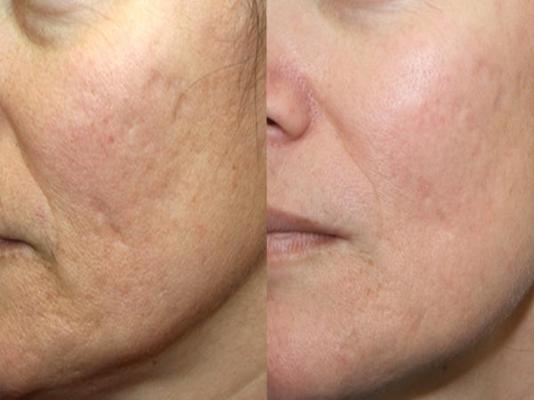 Фруктовые пилинги для кожи лица