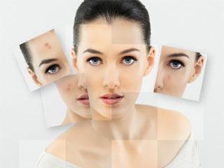 Химический пилинг лица жирная кожа