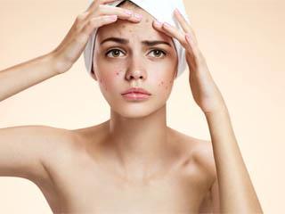 Как часто делать чистку для жирной кожи thumbnail