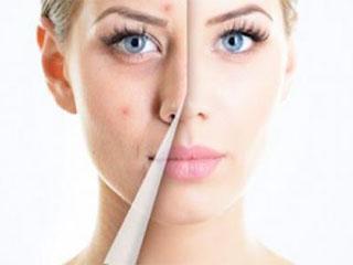 Экстракт мелиссы для кожи лица