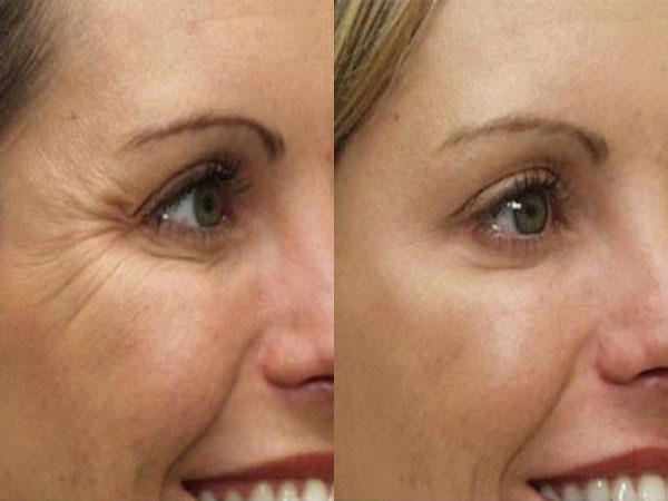 отличается оптимальными ботокс в уголки глаз фото операция прошла
