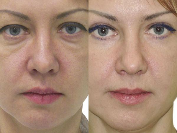 Пластическая операция на глаза