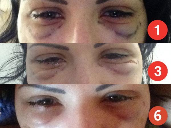 Как убрать темные круги под глазами - в домашних условиях, отзывы, видео