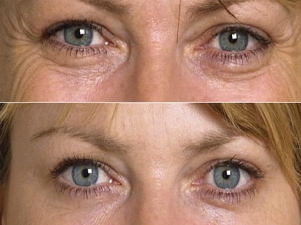 Как убрать темные круги под глазами косметология с фото до и после