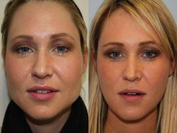 Упражнения для похудения лица фото до и после