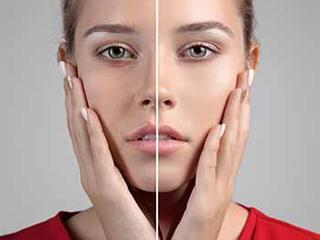 Коррекция морщин вокруг глаз филлерами