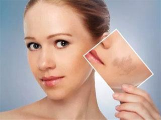 Удаление пигментных пятен лазером на лице и теле.