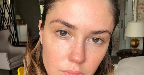 Агата Муцениеце показала фото без косметики: идеальная кожа — заслуга косметологов и уколов гиалуронки